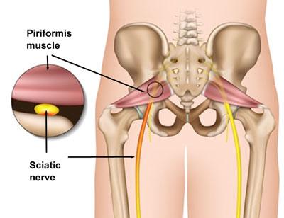 masaj pentru dureri la nivelul articulațiilor șoldului